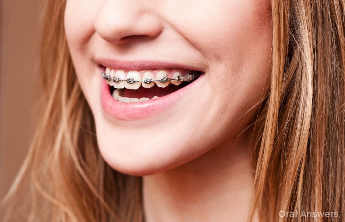 braces_and_pain.jpg